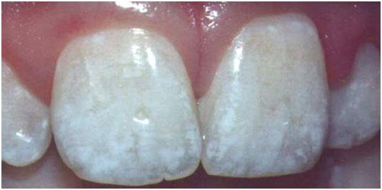 фото гиперплазия эмали зубов